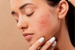 Sunburn Red Skin